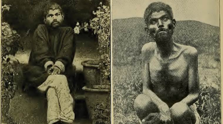 Dina Sanichar The Indian Wolf Child